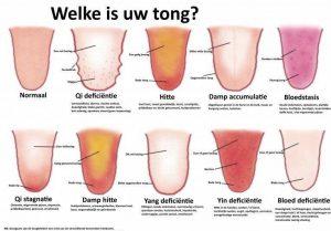 Voorbeeld Tongdiagnose